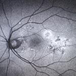 autofluorescencyjne zdjęcie dna oka